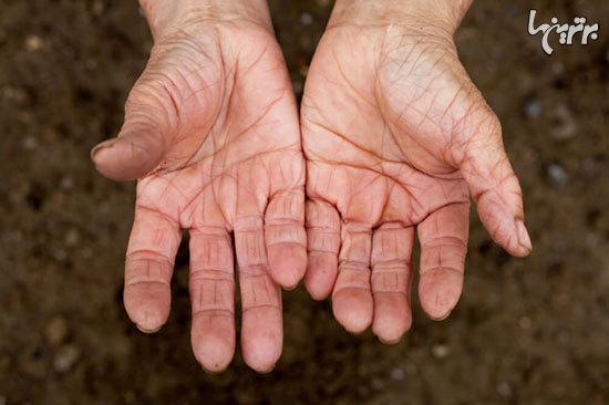 قسمت هایی از بدن تان که سن شما را لو می دهند